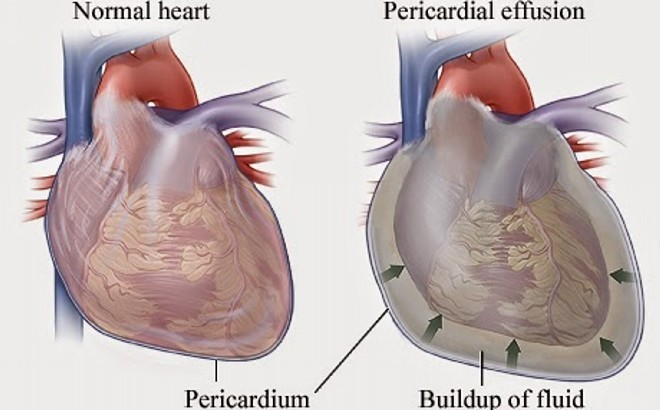 Флюорография тень сердца расширена влево